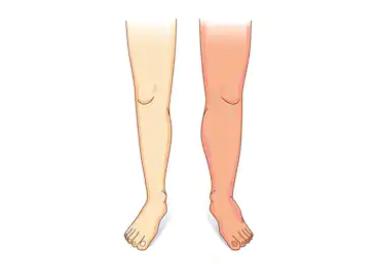 Photo of التخلص من احتباس السوائل في الجسم